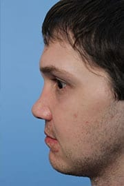http://www.rhinoplasty.org/wp-content/uploads/2015/12/rhinoplasty-patient-04d-before.jpg