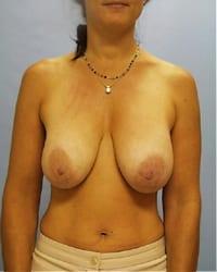 https://www.rhinoplasty.org/wp-content/uploads/2014/12/Layer-01-11.jpg