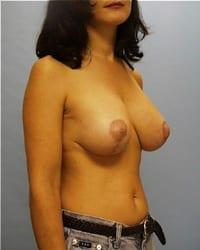https://www.rhinoplasty.org/wp-content/uploads/2014/12/Layer-01-31.jpg