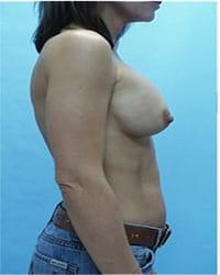https://www.rhinoplasty.org/wp-content/uploads/2014/12/Layer-02-1001.jpg