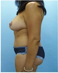 https://www.rhinoplasty.org/wp-content/uploads/2014/12/Layer-02-1151.jpg
