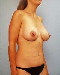 https://www.rhinoplasty.org/wp-content/uploads/2014/12/Layer-02-11.jpg