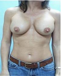 https://www.rhinoplasty.org/wp-content/uploads/2014/12/Layer-02-261.jpg
