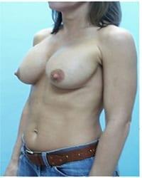 https://www.rhinoplasty.org/wp-content/uploads/2014/12/Layer-02-311.jpg