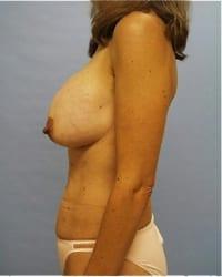 https://www.rhinoplasty.org/wp-content/uploads/2014/12/Layer-02-32.jpg