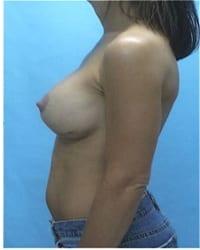 https://www.rhinoplasty.org/wp-content/uploads/2014/12/Layer-02-401.jpg
