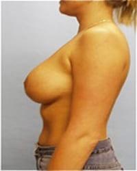 https://www.rhinoplasty.org/wp-content/uploads/2014/12/Layer-03-91.jpg