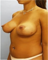 https://www.rhinoplasty.org/wp-content/uploads/2014/12/Layer-03-31.jpg