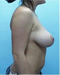 https://www.rhinoplasty.org/wp-content/uploads/2014/12/Layer-04-102.jpg