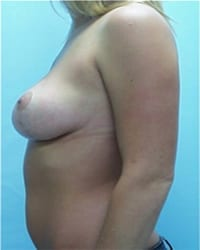 https://www.rhinoplasty.org/wp-content/uploads/2014/12/Layer-04-182.jpg