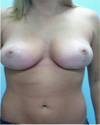https://www.rhinoplasty.org/wp-content/uploads/2014/12/Layer-04-13.jpg