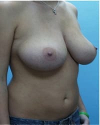 https://www.rhinoplasty.org/wp-content/uploads/2014/12/Layer-04-82.jpg