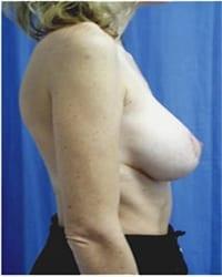 https://www.rhinoplasty.org/wp-content/uploads/2014/12/Layer-05-171.jpg