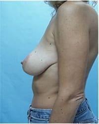 https://www.rhinoplasty.org/wp-content/uploads/2014/12/Layer-05-71.jpg