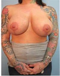 https://www.rhinoplasty.org/wp-content/uploads/2014/12/Layer-06-12.jpg