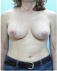 https://www.rhinoplasty.org/wp-content/uploads/2014/12/Layer-06-23-copy1.jpg