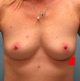https://www.rhinoplasty.org/wp-content/uploads/2015/01/Breast-Aug-Before-2.jpg