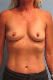https://www.rhinoplasty.org/wp-content/uploads/2015/01/Layer-01-1.jpg