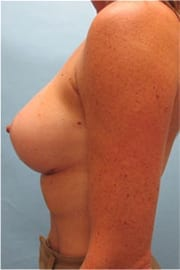 https://www.rhinoplasty.org/wp-content/uploads/2015/01/Layer-01-3.jpg