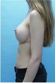 https://www.rhinoplasty.org/wp-content/uploads/2015/01/Layer-02-25.jpg