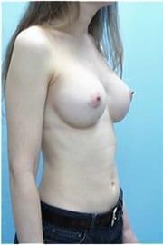 https://www.rhinoplasty.org/wp-content/uploads/2015/01/Layer-02-28.jpg