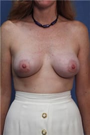 https://www.rhinoplasty.org/wp-content/uploads/2015/01/Layer-02-46.jpg