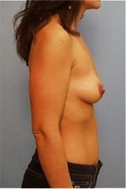 https://www.rhinoplasty.org/wp-content/uploads/2015/01/Layer-02-7.jpg