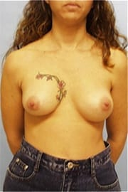 https://www.rhinoplasty.org/wp-content/uploads/2015/01/Layer-02-9.jpg