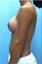 https://www.rhinoplasty.org/wp-content/uploads/2015/01/Layer-03-105.jpg