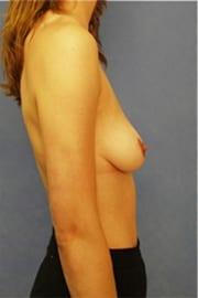 https://www.rhinoplasty.org/wp-content/uploads/2015/01/Layer-03-108.jpg