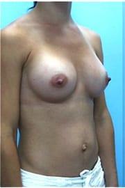 https://www.rhinoplasty.org/wp-content/uploads/2015/01/Layer-03-95.jpg