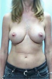 https://www.rhinoplasty.org/wp-content/uploads/2015/01/Layer-04-1.jpg
