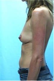 https://www.rhinoplasty.org/wp-content/uploads/2015/01/Layer-04-3.jpg