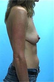 https://www.rhinoplasty.org/wp-content/uploads/2015/01/Layer-04-8.jpg