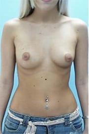 https://www.rhinoplasty.org/wp-content/uploads/2015/01/Layer-05-1.jpg