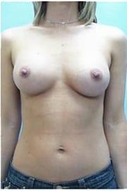 https://www.rhinoplasty.org/wp-content/uploads/2015/01/Layer-05-103.jpg