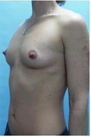 https://www.rhinoplasty.org/wp-content/uploads/2015/01/Layer-05-116.jpg