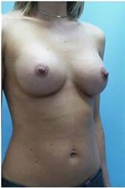 https://www.rhinoplasty.org/wp-content/uploads/2015/01/Layer-05-125.jpg