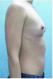 https://www.rhinoplasty.org/wp-content/uploads/2015/01/Layer-05-133.jpg