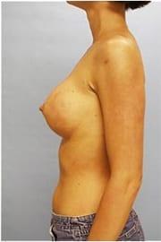 https://www.rhinoplasty.org/wp-content/uploads/2015/01/Layer-05-150.jpg