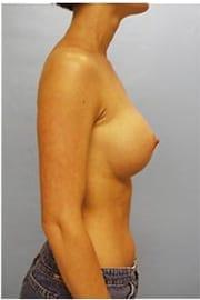 https://www.rhinoplasty.org/wp-content/uploads/2015/01/Layer-05-163.jpg