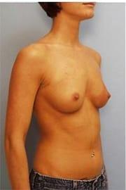 https://www.rhinoplasty.org/wp-content/uploads/2015/01/Layer-05-177.jpg