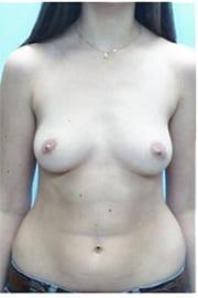 https://www.rhinoplasty.org/wp-content/uploads/2015/01/Layer-05-59.jpg