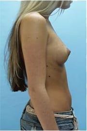 https://www.rhinoplasty.org/wp-content/uploads/2015/01/Layer-05-6.jpg
