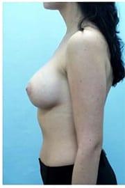 https://www.rhinoplasty.org/wp-content/uploads/2015/01/Layer-05-88.jpg