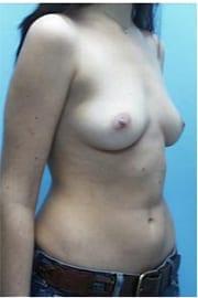https://www.rhinoplasty.org/wp-content/uploads/2015/01/Layer-05-96.jpg