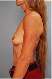 https://www.rhinoplasty.org/wp-content/uploads/2015/01/Layer-06-15.jpg