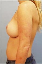 https://www.rhinoplasty.org/wp-content/uploads/2015/01/Layer-06-6.jpg