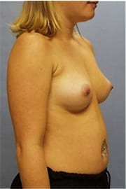 https://www.rhinoplasty.org/wp-content/uploads/2015/01/Layer-06-8.jpg