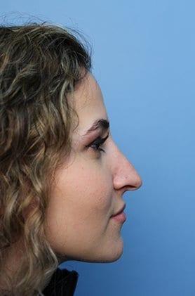 https://www.rhinoplasty.org/wp-content/uploads/2015/12/DD3-1.jpg